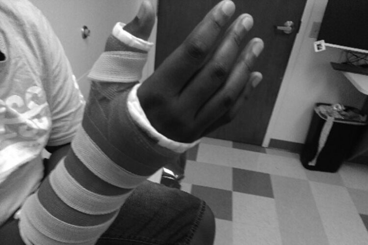 Sprained Your Finger